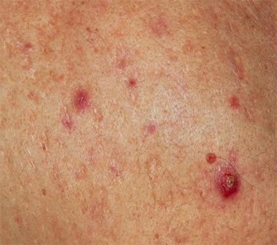 针对痤疮应该如何治疗呢?