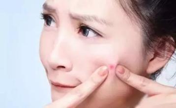 暗疮性痤疮的出现的病因有哪些?
