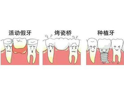 成人牙齿修复专科