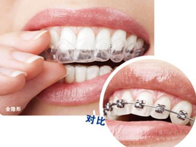 成人正畸牙齿专科