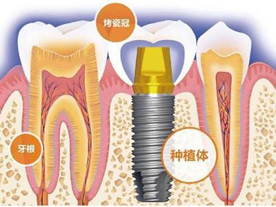 牙齿修复专科