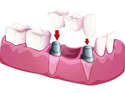 专业牙齿修复科