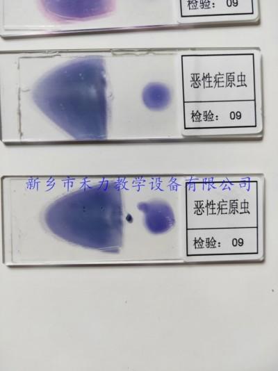 恶性疟原虫  间日疟原虫  三日疟原虫  人体寄生虫病标本