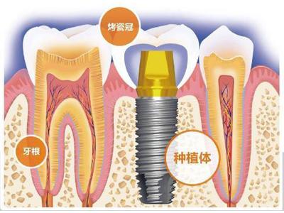 无疼牙种植专科