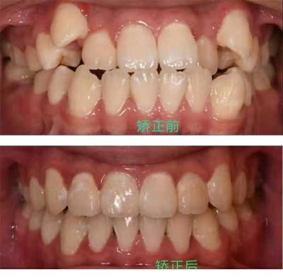 儿童牙齿正畸专科