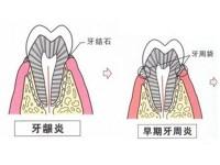 治疗牙周专科