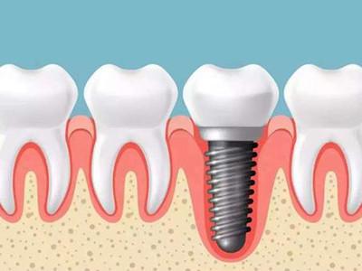 专业牙齿种植专科
