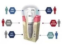 全口种植牙专科