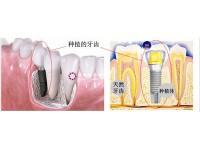 单牙种植专科