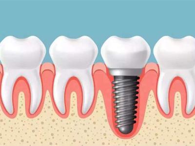 成人种植单牙专科