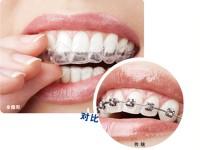 成人隐形矫正牙