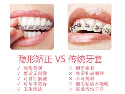 牙齿矫正专科