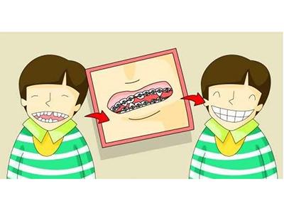 儿童矫正牙齿专科