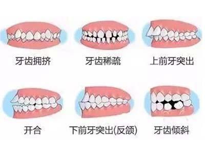 正畸牙齿专科