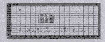 食品粉碎机噪音信号自功率谱